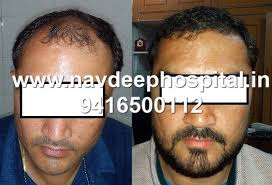 hair transplant costs in the philippines fue hair transplant cost for philippines navdeep hospital