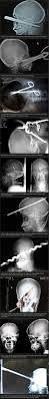 best 25 radiology careers ideas on pinterest radiology schools