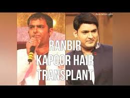 ranbir kapoor hair transplant ranbir kapoor hair transplant youtube