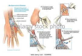 Tendon Synovial Sheath Extensor Retinaculum Stock Photos U0026 Extensor Retinaculum Stock