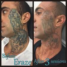 100 laser tattoo removal dark skin how does laser tattoo