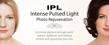 intense pulsed light therapy intense pulsed light photofacial treatment