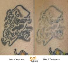 829 best tattoo removal in progress images on pinterest