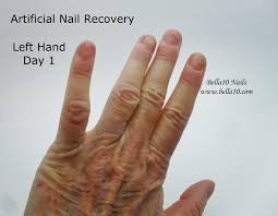 bella10 nails the secret to artificial nail recovery