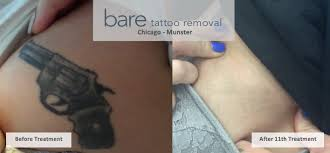bare tattoo removal tattoo removal