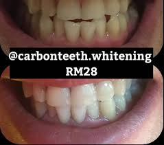 carbon teeth whitening malaysia home facebook