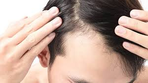 types of hair lines hairline revision men s anti aging clinic of atlanta