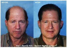 hair plugs for men male hair transplant results bauman medical group