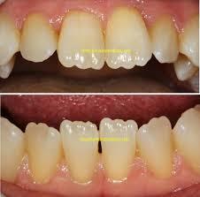 d is for dentist september 2014