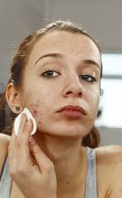 Face Mapping Acne Pimples Come Back After Ending Acne Treatment