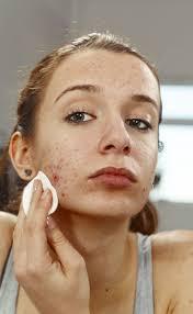 Face Acne Map Pimples Come Back After Ending Acne Treatment