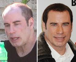 robert redford hairpiece john travolta plastic surgery botox and hair transplant