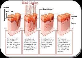 collagen red light therapy health and wellness of carmel red light therapy