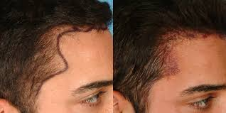 neograft recovery timeline new neograft device improves hair transplants