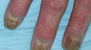 nail bed pain pictures of psoriatic arthritis symptoms