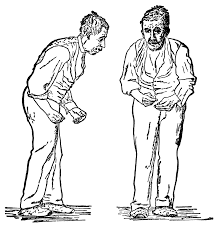 parkinson u0027s disease wikipedia