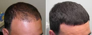 rogaine for women success stories hair treatment