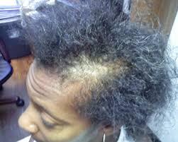 the hair centre black afro caribbean hair loss