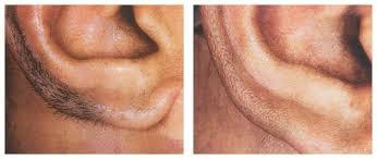 laser hair removal philadelphia suburbs strella aesthetics
