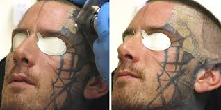 tattoo removal using laser surgery business insider