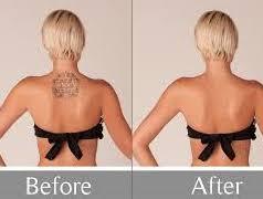 rejuvi non laser tattoo removal select beauty solutions dubai