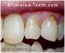 light cure composite filling cosmetic applications for dental bonding tooth gaps veneers how