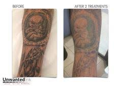 unwanted ink laser tattoo removal sydney book your free consult