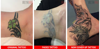 rethink laser tattoo removal photos