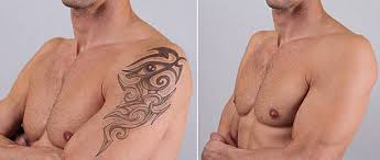 tattoo removal pictures images and stock photos istock