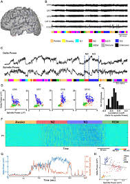 cellular and neurochemical basis of sleep stages in the