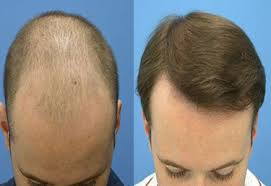 hair bonding hair weaving hair bonding acne scars clinic in ahmedabad