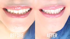 whiten teeth instantly at home in under 10 minutes naturally