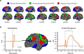 distinct patterns of temporal and directional connectivity among