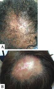 black women u0027s hair the main scalp dermatoses and aesthetic