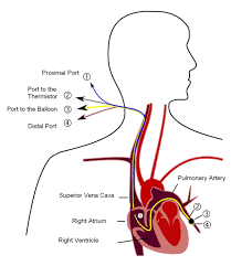 pulmonary artery catheter wikipedia