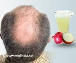 for hair onions and hair loss
