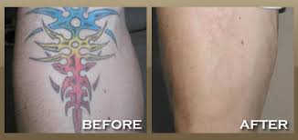 laser tattoo removal skinpeccable