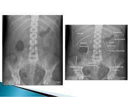 Radiology Anatomy Radiographic Anatomy Of Gastrointestinal Tract