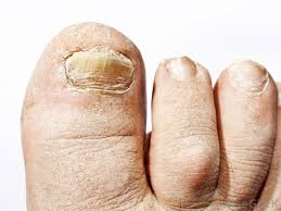 what causes toenail ridges with pictures