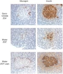 inhibiting glycosphingolipid synthesis improves glycemic control