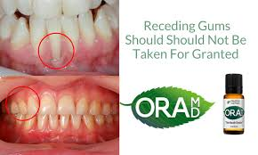 Pictures Of Oral Cancer On Roof Of Mouth by Oramd Blog