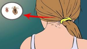 how to get rid of head lice permanently rare traditional home