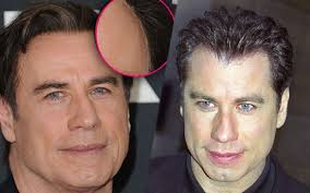 how are female celebrities dealing with thinning asg ing hair famous hollywood men with great hair pieces john travolta