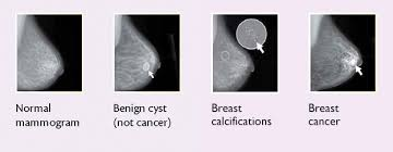 Mammogram Meme - breast changes and conditions national cancer institute
