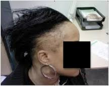 hair transplant for black women african american fue hair transplant عيادة dermhair دبي