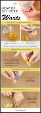 best 25 get rid of warts ideas on pinterest wart medicine how
