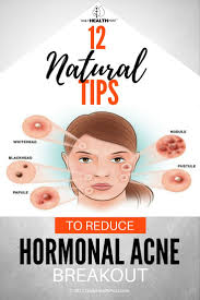 Face Mapping Acne 12 Natural Tips To Reduce Hormonal Acne Breakout Hormonal Acne
