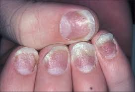 nail psoriasis the journey so far dogra a arora ak indian j