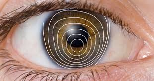 Can Lasik Cause Blindness Keratoconus Faq Allaboutvision Com
