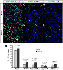 canonical wnt signaling promotes the proliferation and